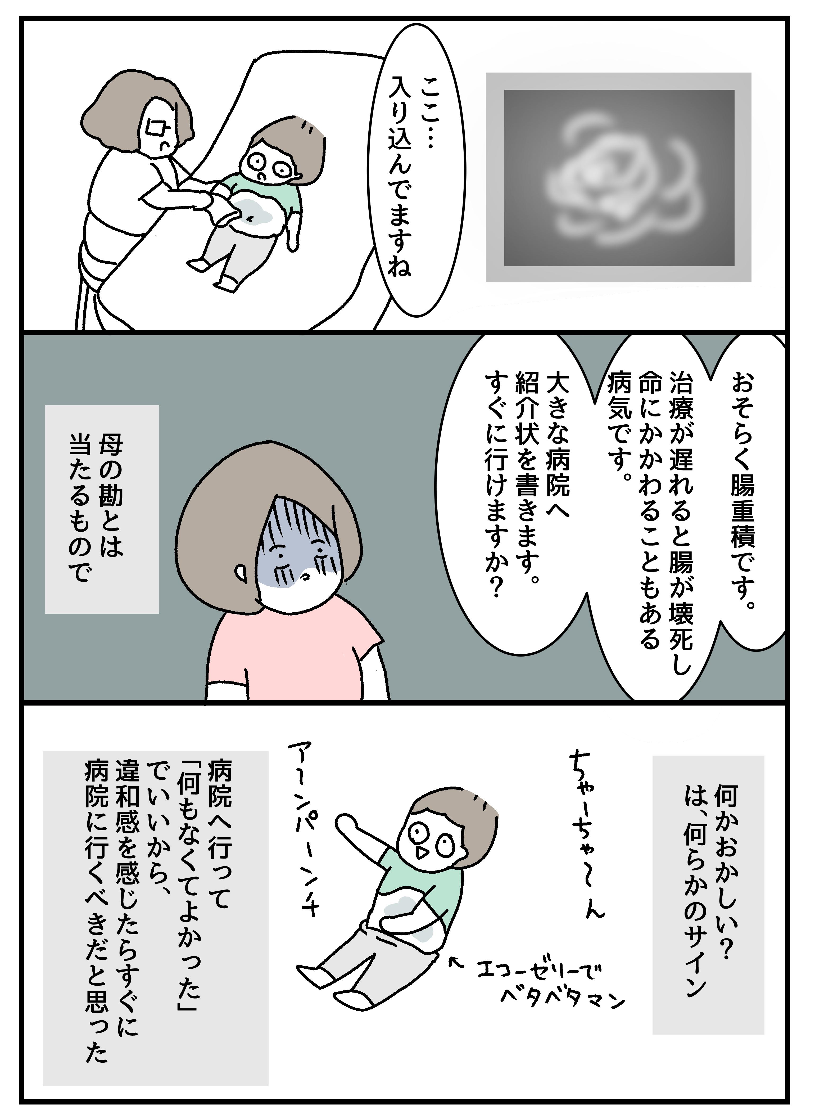 赤ちゃん 腸 重 積